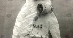 Médicos retiraram objetos do útero da adolescente, que teriam sido introduzidos pelo irmão com ajuda do pai (Foto: Dyego Queiroz/ TV Morena)